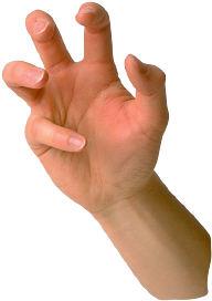 Arthritis 1 Image